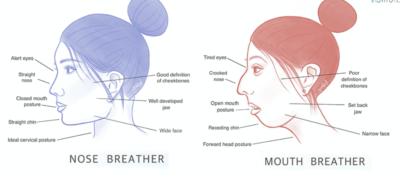 mouth breathing image